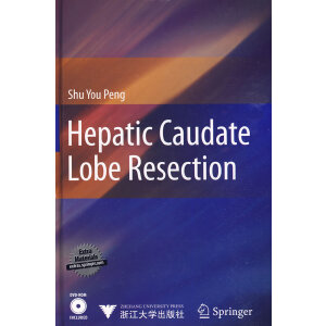 Hepatic Caudate Lobe Resection(肝尾叶切除术)