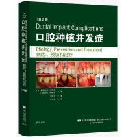 口腔种植并发症 病因、预防和治疗 第二版