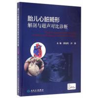 胎儿心脏畸形解剖与超声对比诊断(配增值)