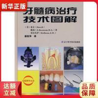 牙髓病治疗技术图解 (美)比尔,(美)鲍曼,(美)基尔巴萨,潘亚萍 9787538149982 辽宁科学技术出版社 新