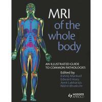 【预订】MRI of the Whole Body: An Illustrated Guide to
