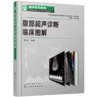 临床常见疾病超声图谱系列--腹部超声诊断临床图解 李安华 化学工业出版社 9787122348357