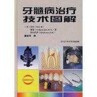 【全新直发】牙髓病治疗技术图解 (美)比尔,(美)鲍曼,(美)基尔巴萨,潘亚萍 9787538149982 辽宁科学技