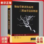 脑血管解剖及病理三维血管造影图谱 (美)波顿(Borden, N.M),臧培卓 辽宁科学技术出版社 978753815