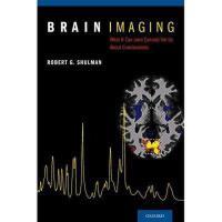 【预订】Brain Imaging: What It Can (and Cannot) Tell Us