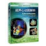 超声心动图解析(第3版)