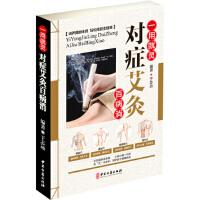【新书店正版】一用就灵 对症艾灸百病消于志远9787515216485中医古籍出版社