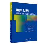垂体MRI(翻译版)