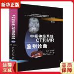 中枢神经系统CT和MR鉴别诊断 鱼博浪 陕西科学技术出版社 9787536953178
