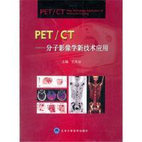 PET/CT――分子影像学新技术应用