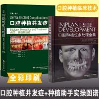 口腔种植并发症 病因 预防和治疗 第2版+ 口腔种植位点处理全集 口腔种植治疗并发症疾病临床处理技术书籍 牙齿粘接